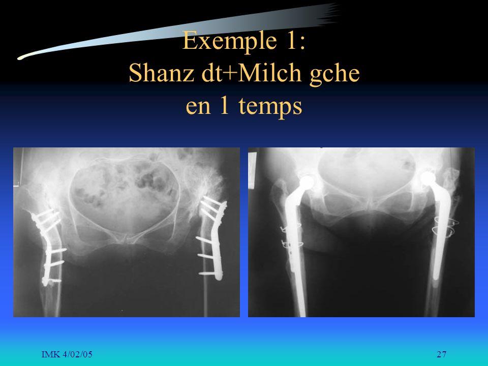 IMK 4/02/0527 Exemple 1: Shanz dt+Milch gche en 1 temps