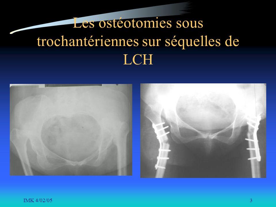 IMK 4/02/053 Les ostéotomies sous trochantériennes sur séquelles de LCH