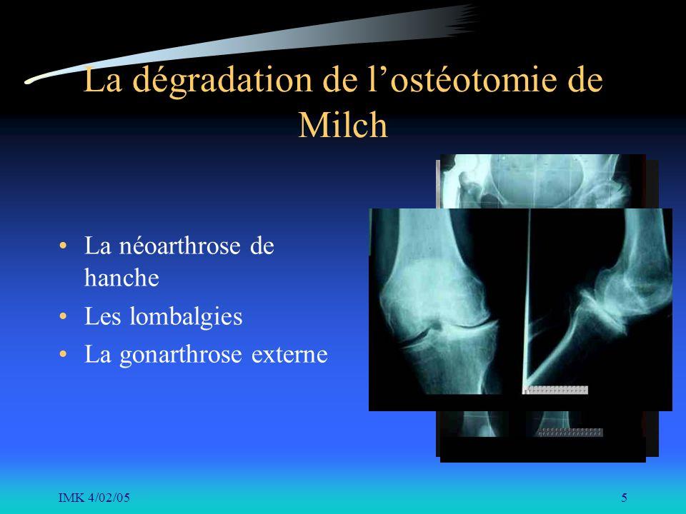 IMK 4/02/055 La dégradation de lostéotomie de Milch La néoarthrose de hanche Les lombalgies La gonarthrose externe