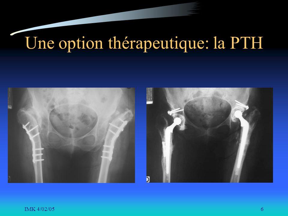 IMK 4/02/056 Une option thérapeutique: la PTH