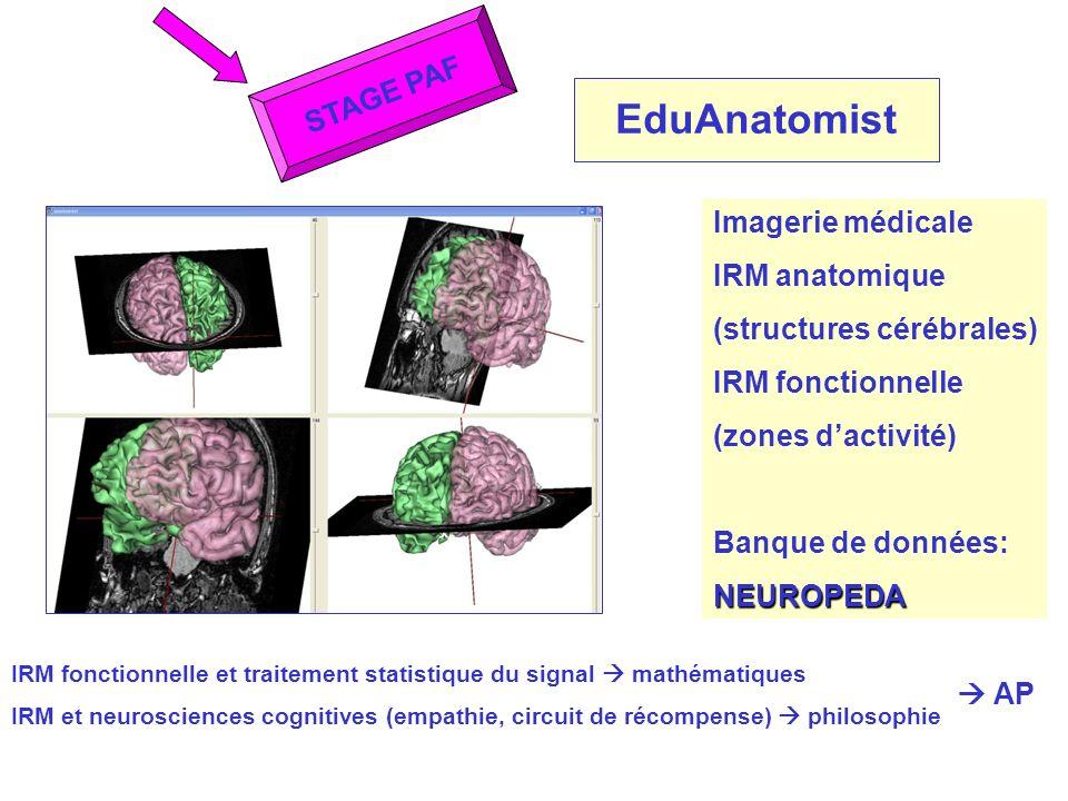 EduAnatomist STAGE PAF Imagerie médicale IRM anatomique (structures cérébrales) IRM fonctionnelle (zones dactivité) Banque de données:NEUROPEDA IRM fo