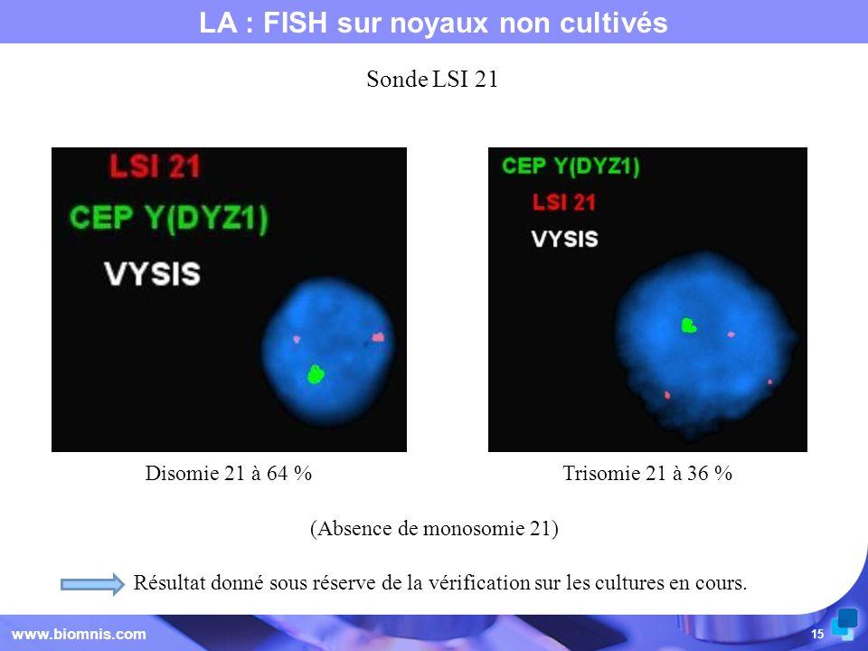 15 LA : FISH sur noyaux non cultivés www.biomnis.com (Absence de monosomie 21) Sonde LSI 21 Résultat donné sous réserve de la vérification sur les cul