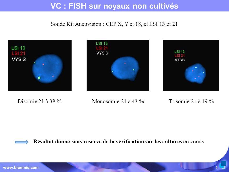 4 VC : FISH sur noyaux non cultivés www.biomnis.com Disomie 21 à 38 % Monosomie 21 à 43 % Trisomie 21 à 19 % Résultat donné sous réserve de la vérific