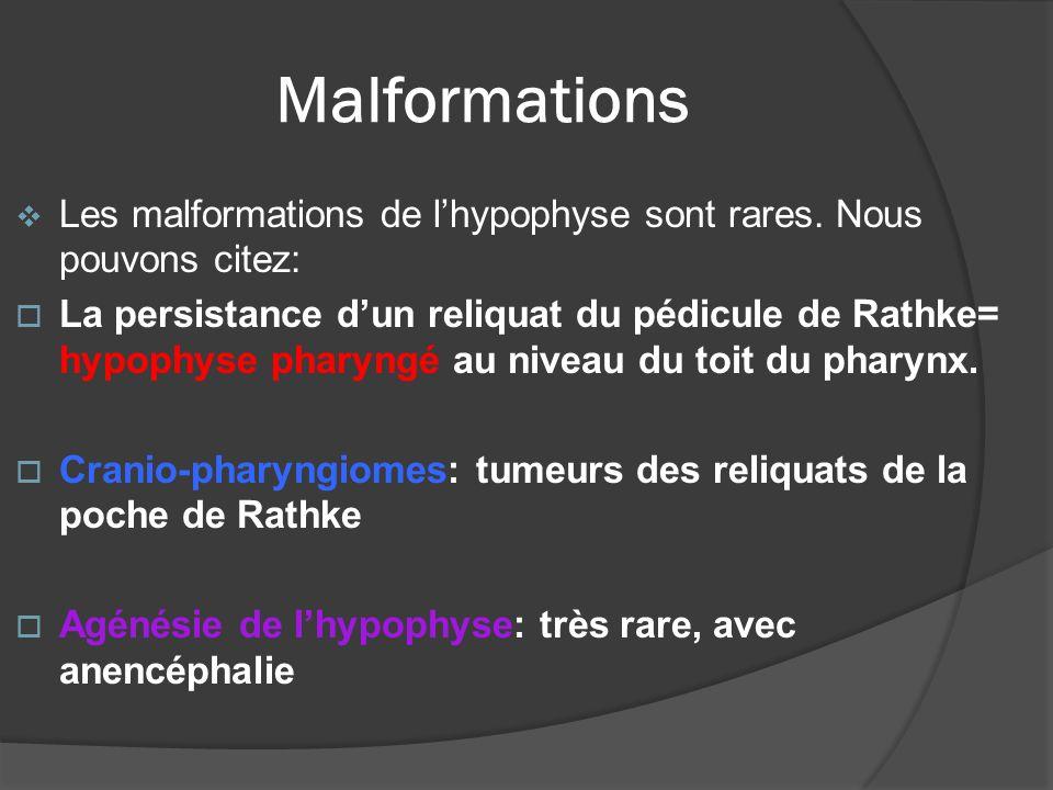 Malformations Les malformations de lhypophyse sont rares. Nous pouvons citez: La persistance dun reliquat du pédicule de Rathke= hypophyse pharyngé au