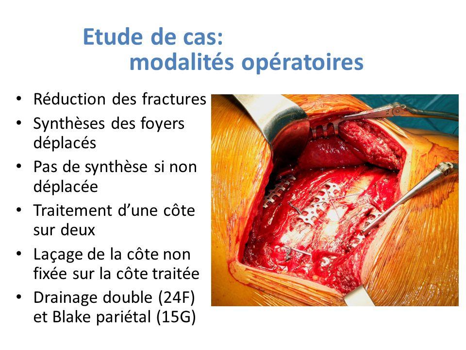 Etude de cas: modalités opératoires Réduction des fractures Synthèses des foyers déplacés Pas de synthèse si non déplacée Traitement dune côte sur deu