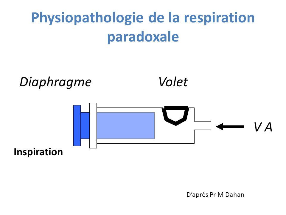 Inspiration Physiopathologie de la respiration paradoxale Volet V A Diaphragme Daprès Pr M Dahan