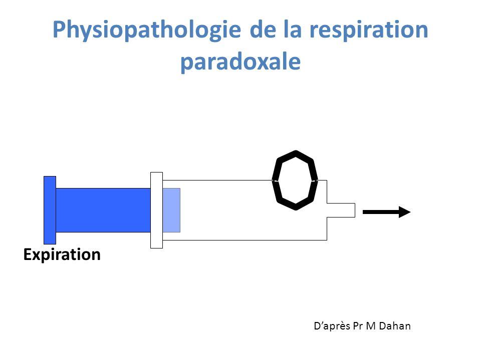 Expiration Physiopathologie de la respiration paradoxale Daprès Pr M Dahan