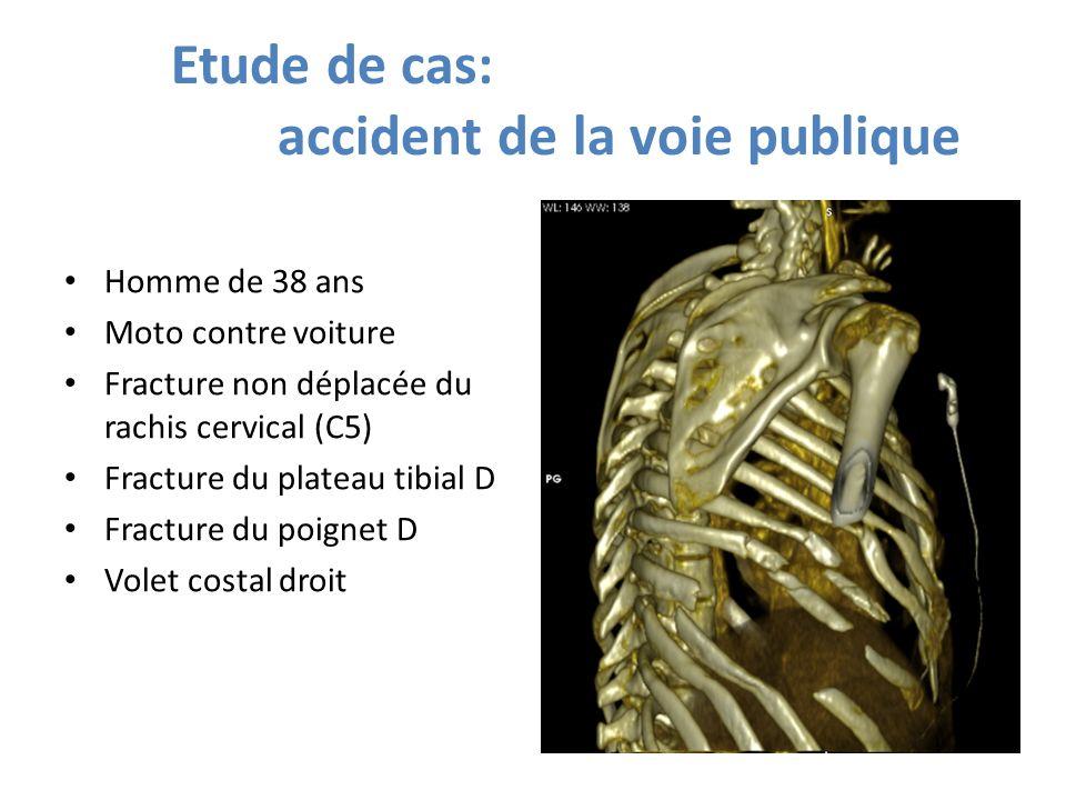 Etude de cas: accident de la voie publique Homme de 38 ans Moto contre voiture Fracture non déplacée du rachis cervical (C5) Fracture du plateau tibia