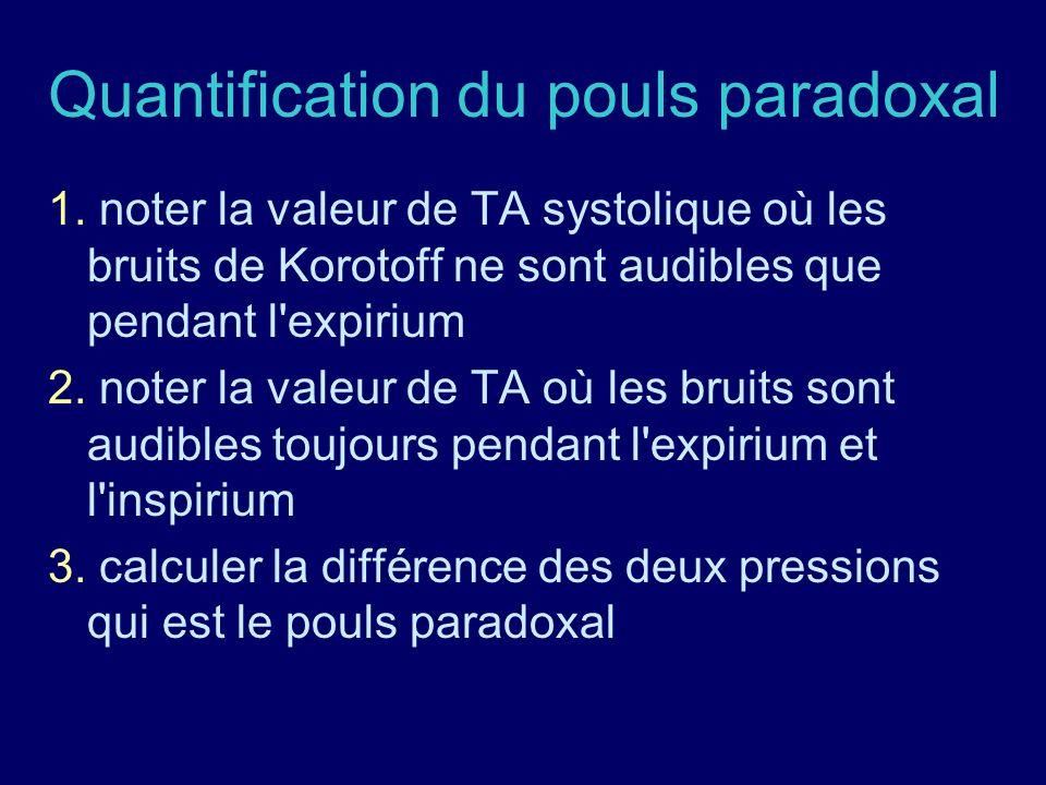 Quantification du pouls paradoxal 1. noter la valeur de TA systolique où les bruits de Korotoff ne sont audibles que pendant l'expirium 2. noter la va