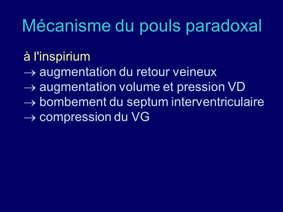 Mécanisme du pouls paradoxal à l'inspirium augmentation du retour veineux augmentation volume et pression VD bombement du septum interventriculaire co