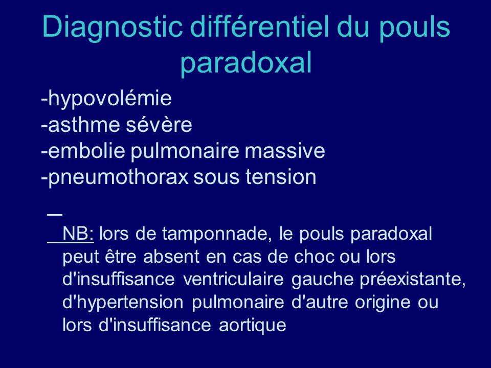 Diagnostic différentiel du pouls paradoxal -hypovolémie -asthme sévère -embolie pulmonaire massive -pneumothorax sous tension NB: lors de tamponnade,