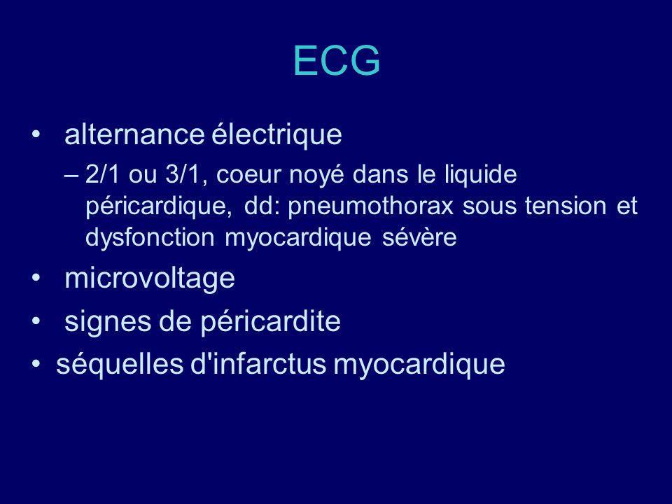 ECG alternance électrique –2/1 ou 3/1, coeur noyé dans le liquide péricardique, dd: pneumothorax sous tension et dysfonction myocardique sévère microv