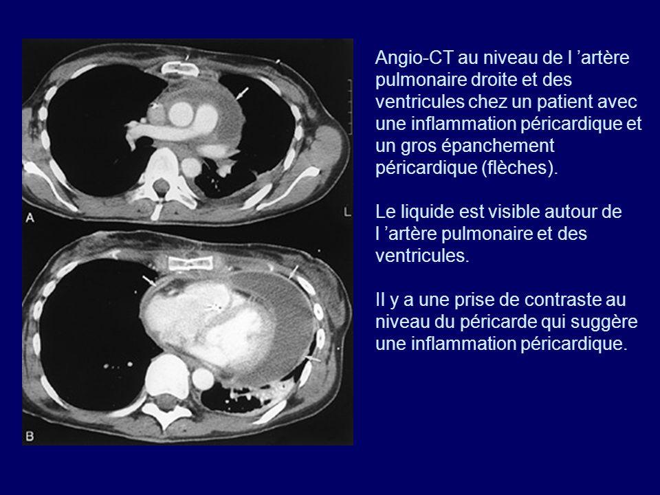 Angio-CT au niveau de l artère pulmonaire droite et des ventricules chez un patient avec une inflammation péricardique et un gros épanchement péricard