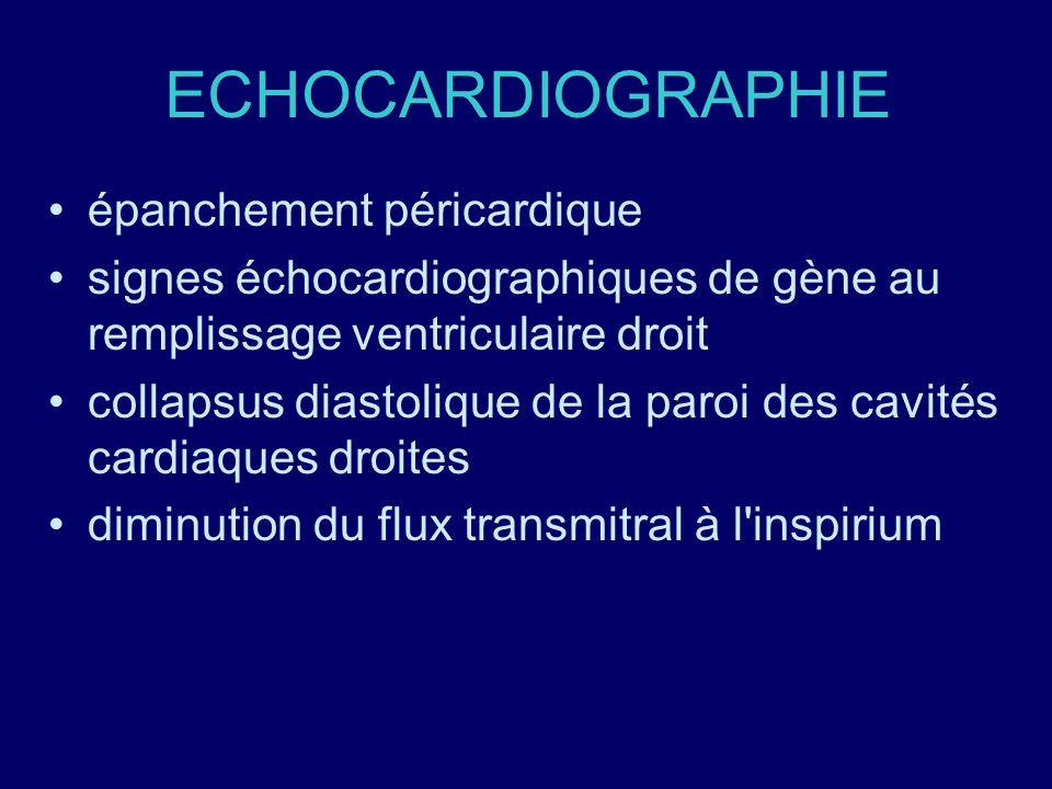 ECHOCARDIOGRAPHIE épanchement péricardique signes échocardiographiques de gène au remplissage ventriculaire droit collapsus diastolique de la paroi de
