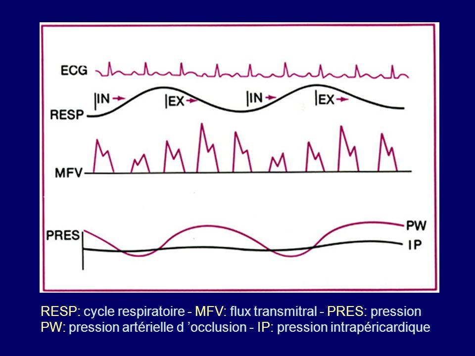 RESP: cycle respiratoire - MFV: flux transmitral - PRES: pression PW: pression artérielle d occlusion - IP: pression intrapéricardique