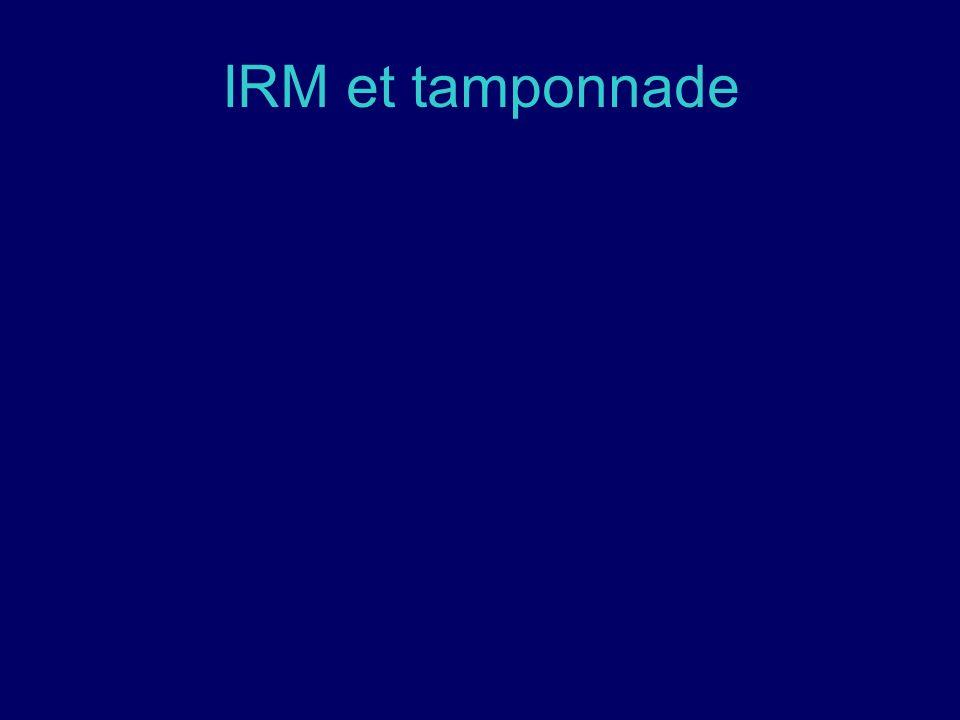 IRM et tamponnade