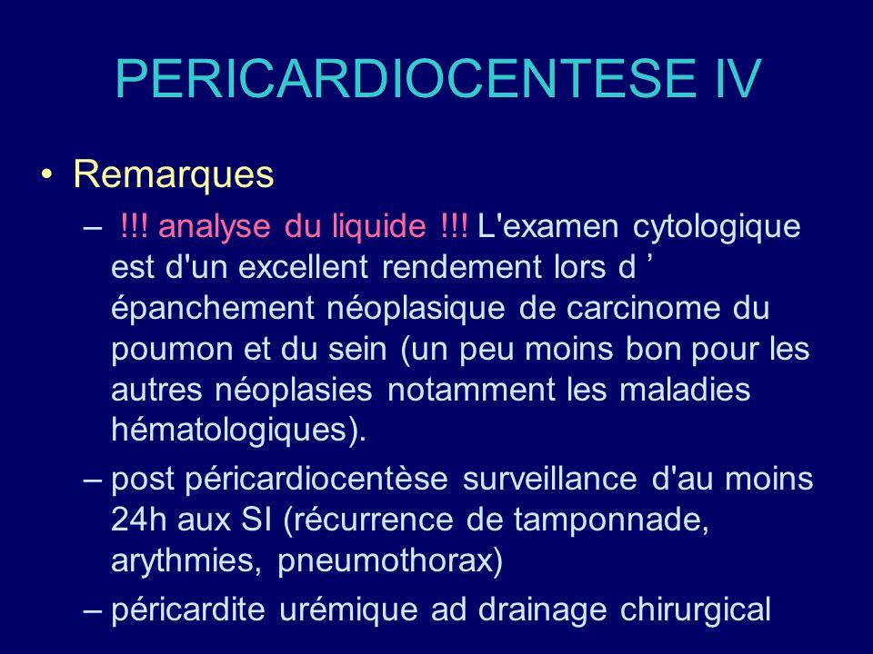PERICARDIOCENTESE IV Remarques – !!! analyse du liquide !!! L'examen cytologique est d'un excellent rendement lors d épanchement néoplasique de carcin