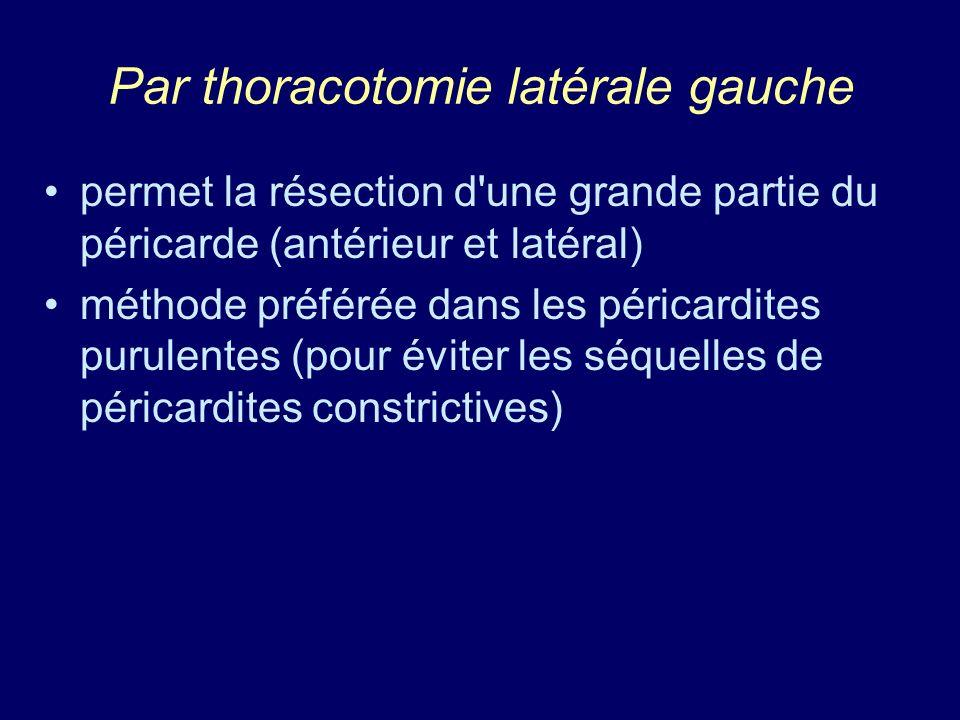 Par thoracotomie latérale gauche permet la résection d'une grande partie du péricarde (antérieur et latéral) méthode préférée dans les péricardites pu