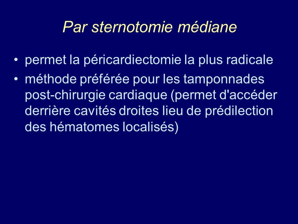 Par sternotomie médiane permet la péricardiectomie la plus radicale méthode préférée pour les tamponnades post-chirurgie cardiaque (permet d'accéder d