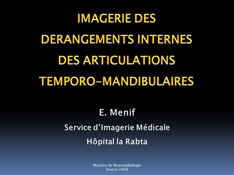 E. Menif Service dImagerie Médicale Hôpital la Rabta Mastère de Neuroradiologie Sousse 2008