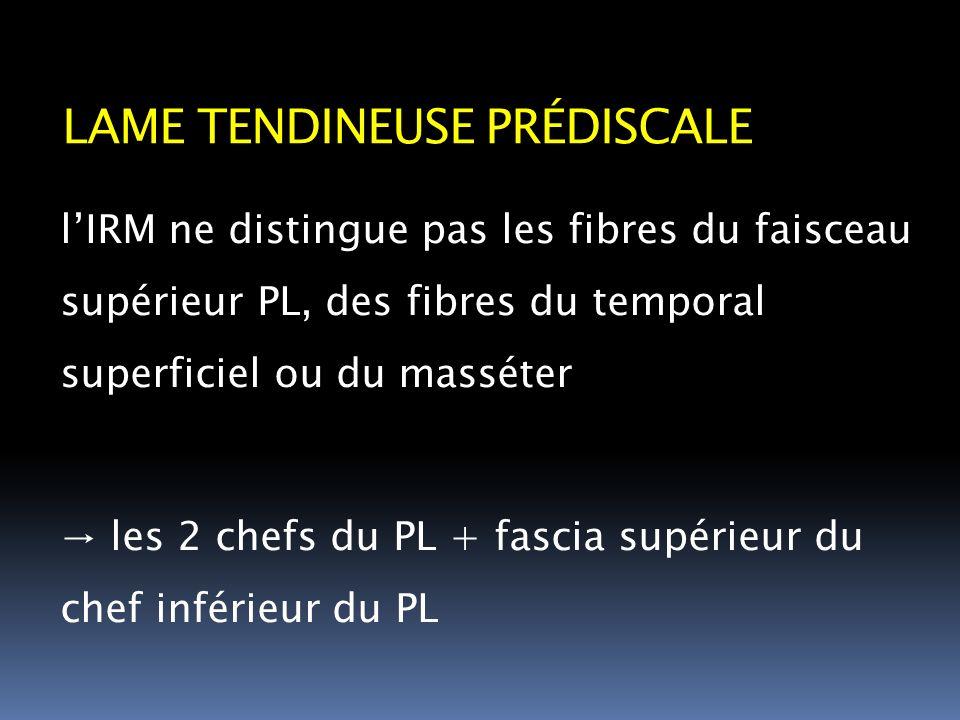 lIRM ne distingue pas les fibres du faisceau supérieur PL, des fibres du temporal superficiel ou du masséter les 2 chefs du PL + fascia supérieur du c