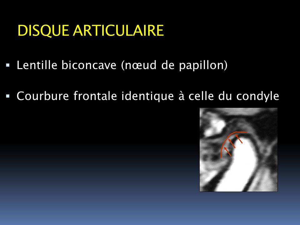 DISQUE ARTICULAIRE Lentille biconcave (nœud de papillon) Courbure frontale identique à celle du condyle