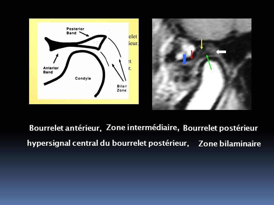 Zone bilaminaire Bourrelet antérieur, Zone intermédiaire, Bourrelet postérieur hypersignal central du bourrelet postérieur,