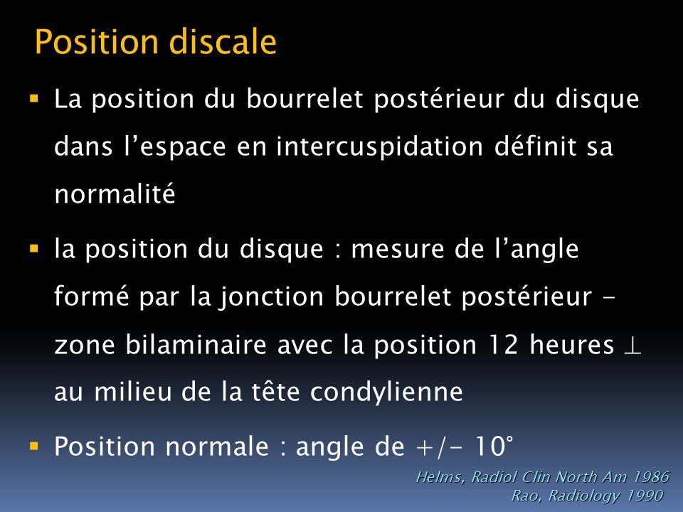 Position discale La position du bourrelet postérieur du disque dans lespace en intercuspidation définit sa normalité la position du disque : mesure de