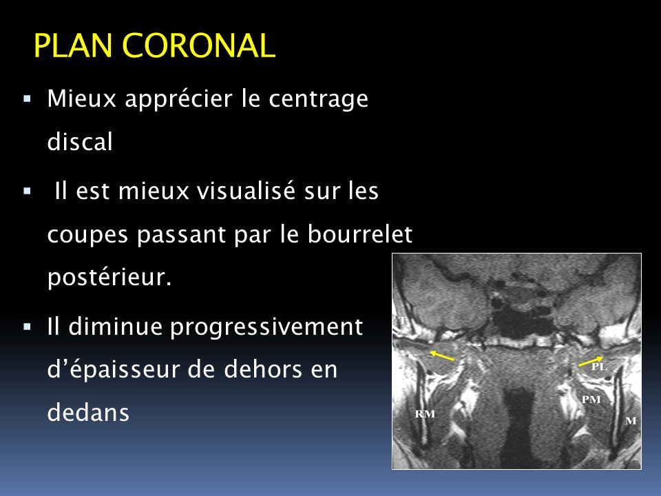 PLAN CORONAL Mieux apprécier le centrage discal Il est mieux visualisé sur les coupes passant par le bourrelet postérieur. Il diminue progressivement