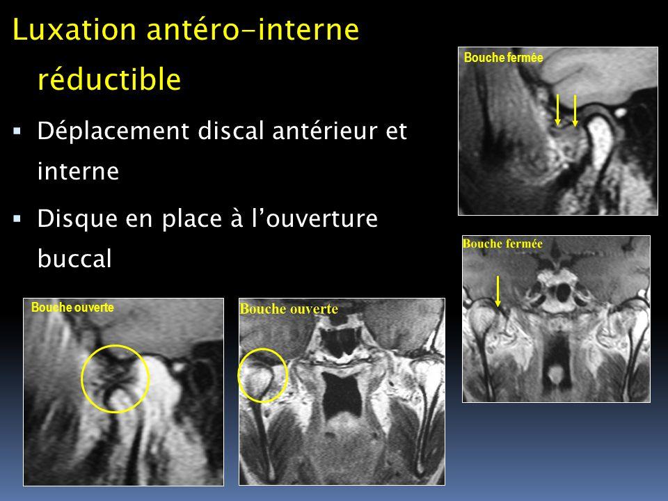 Luxation antéro-interne réductible Déplacement discal antérieur et interne Disque en place à louverture buccal Bouche fermée Bouche ouverte