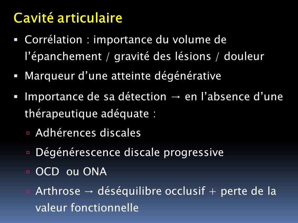 Cavité articulaire Corrélation : importance du volume de lépanchement / gravité des lésions / douleur Marqueur dune atteinte dégénérative Importance d