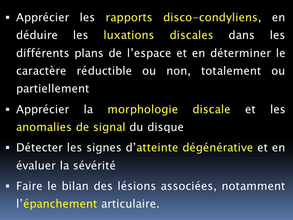 Apprécier les rapports disco-condyliens, en déduire les luxations discales dans les différents plans de lespace et en déterminer le caractère réductib