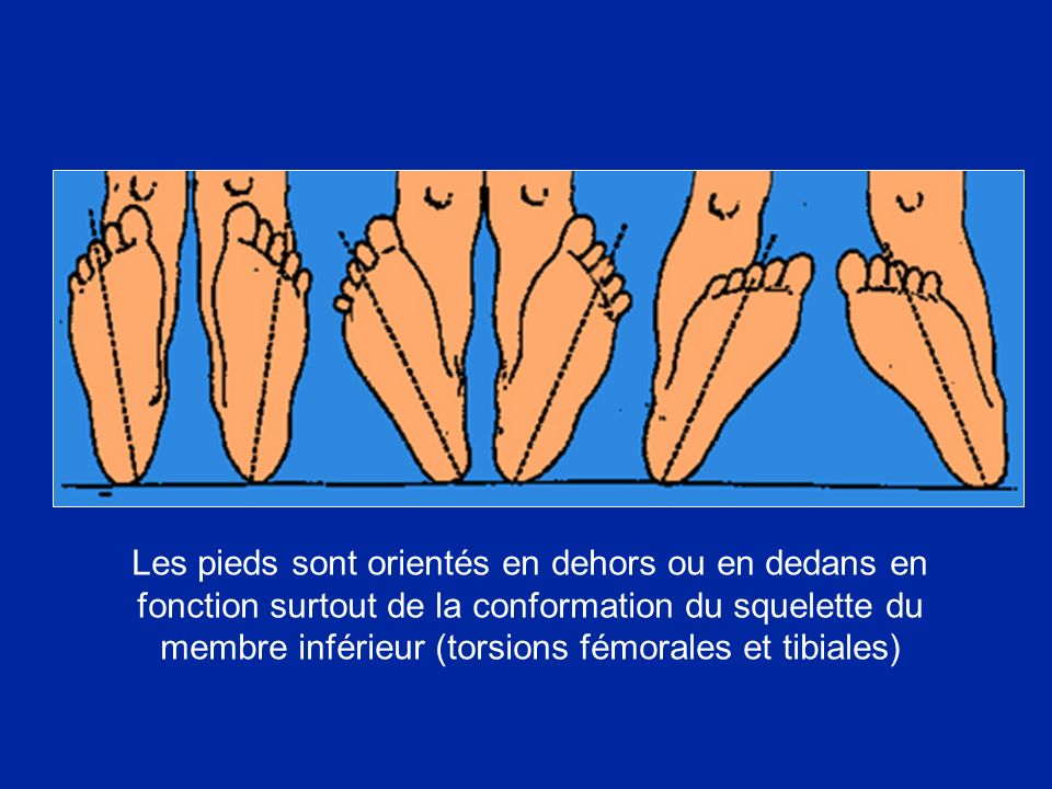 Les pieds sont orientés en dehors ou en dedans en fonction surtout de la conformation du squelette du membre inférieur (torsions fémorales et tibiales)
