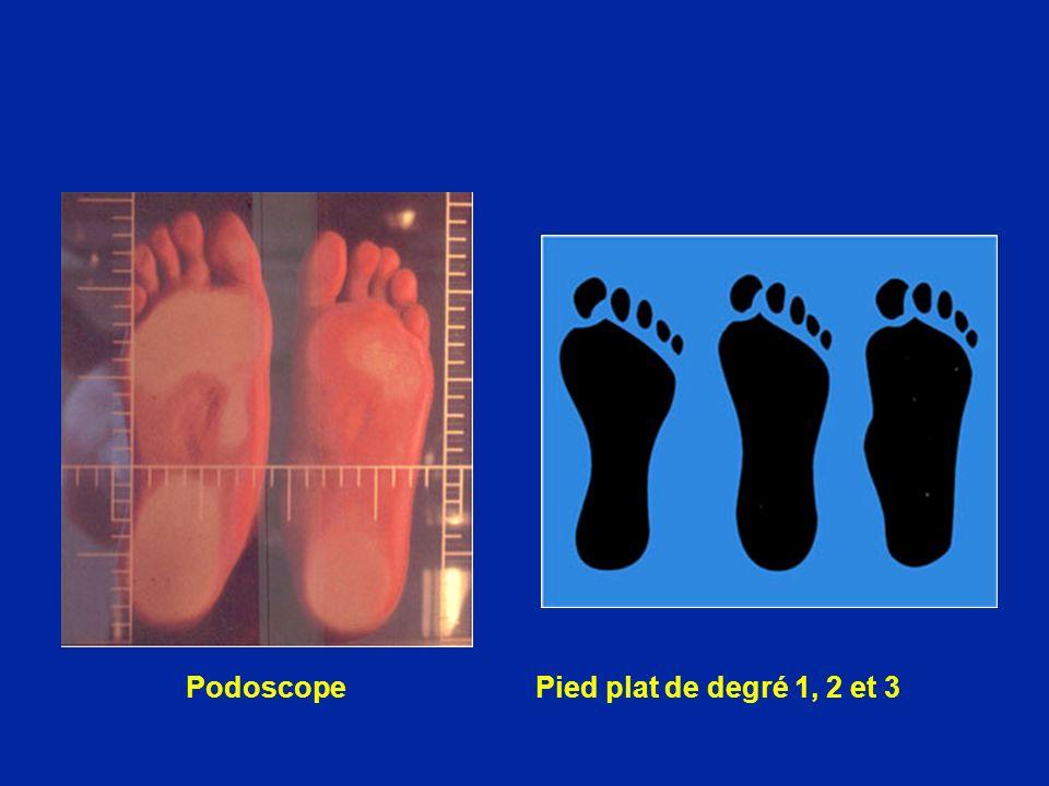 Podoscope Pied plat de degré 1, 2 et 3