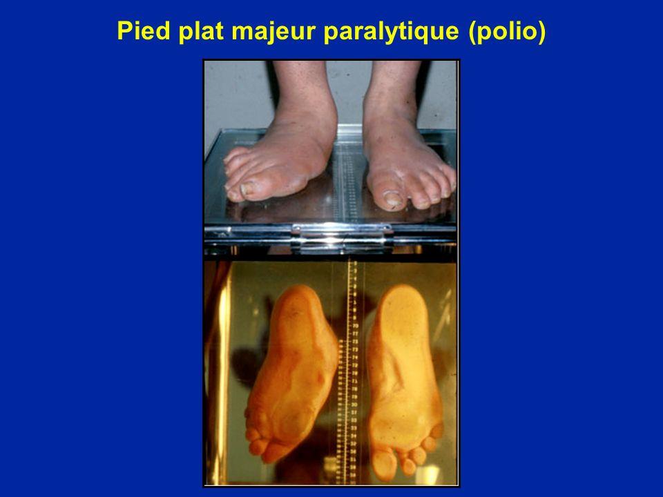 Pied plat majeur paralytique (polio)