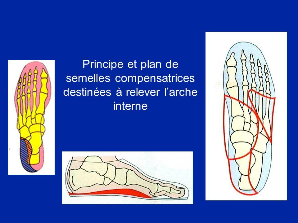 Principe et plan de semelles compensatrices destinées à relever larche interne