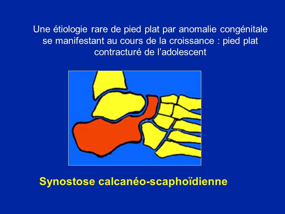 Synostose calcanéo-scaphoïdienne Une étiologie rare de pied plat par anomalie congénitale se manifestant au cours de la croissance : pied plat contrac