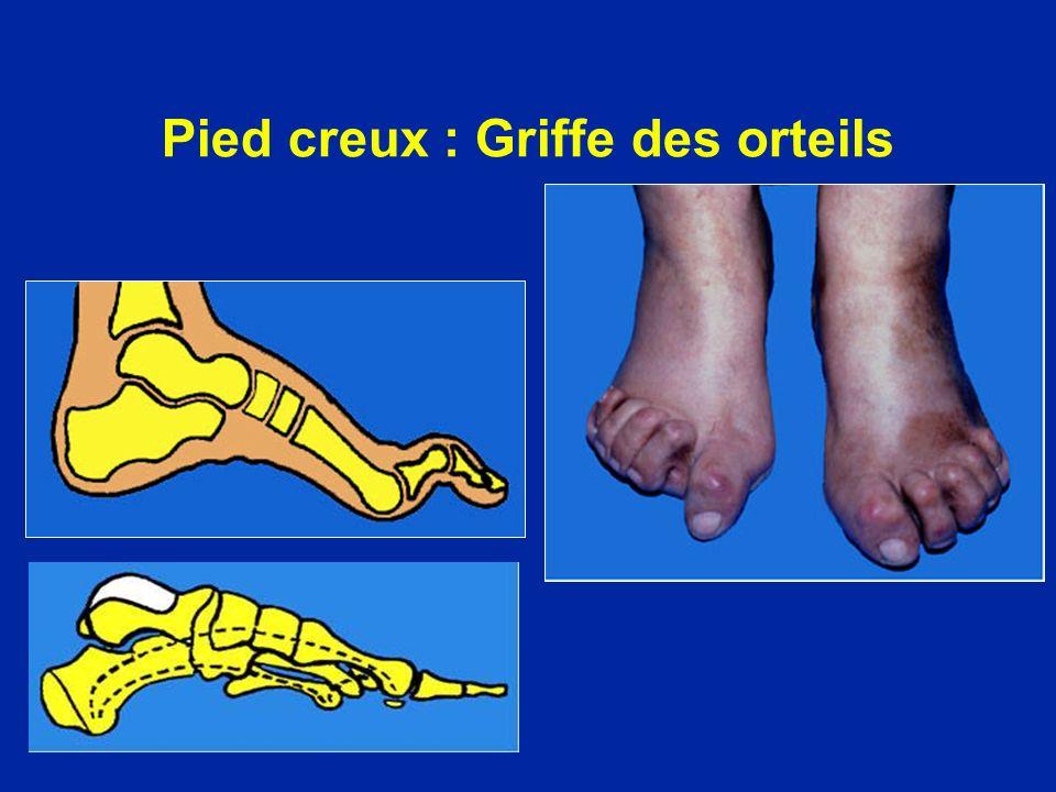 Pied creux : Griffe des orteils