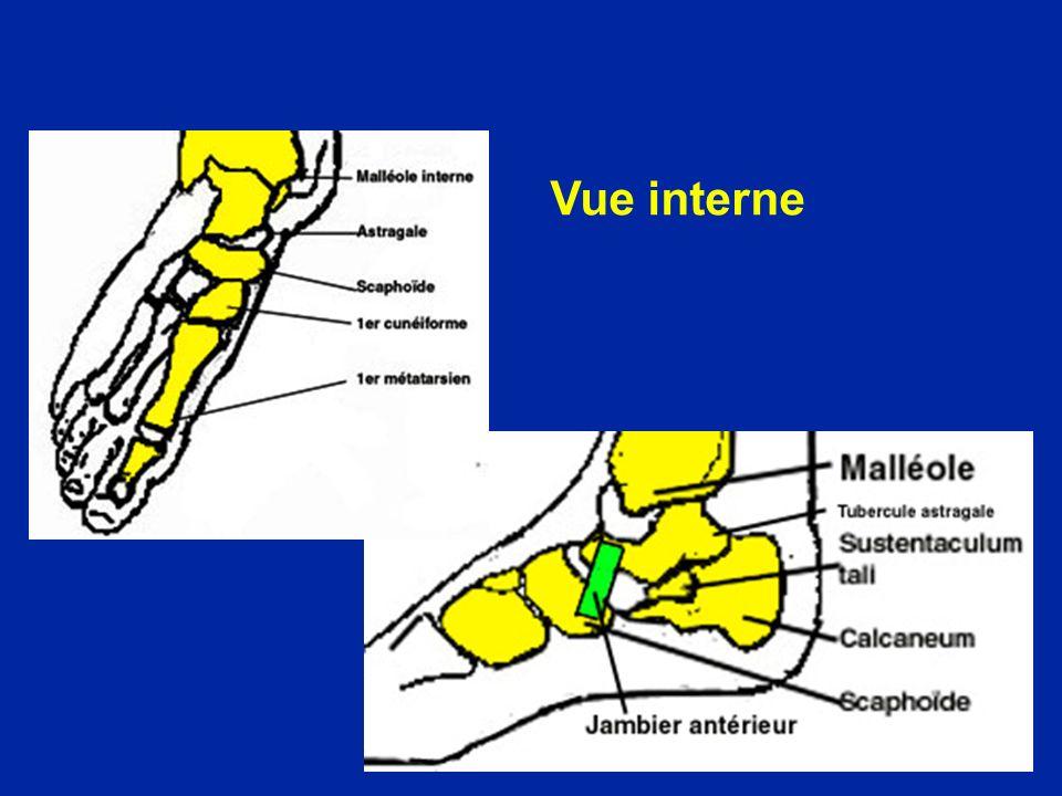 Pied paralytique : une ancienne opération : larthroryse postérieure