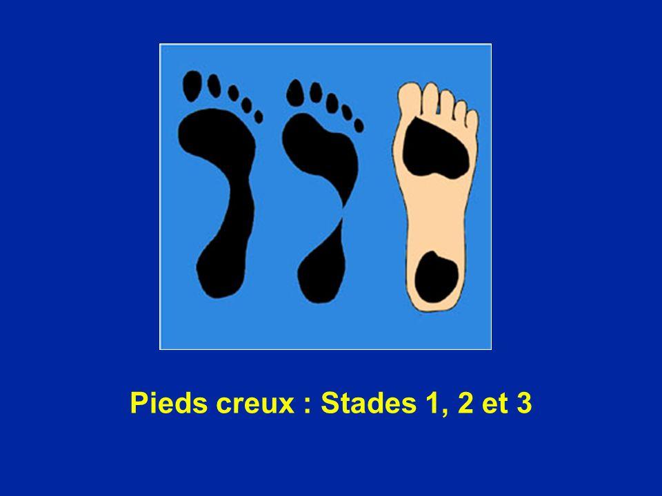 Pieds creux : Stades 1, 2 et 3
