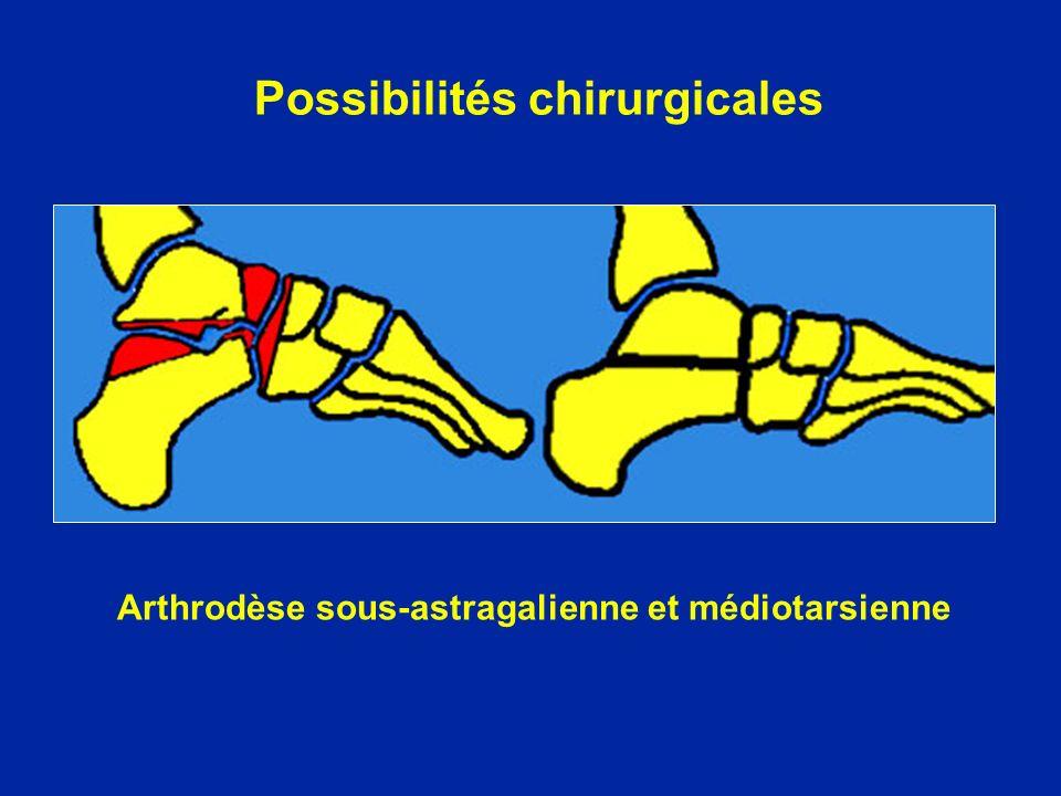 Arthrodèse sous-astragalienne et médiotarsienne Possibilités chirurgicales