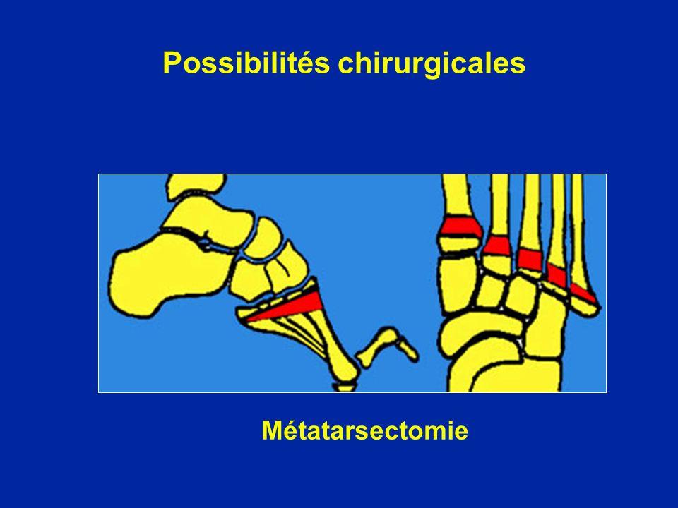 Métatarsectomie Possibilités chirurgicales