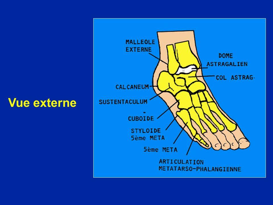 Arthrodèse tibio-astragalienne
