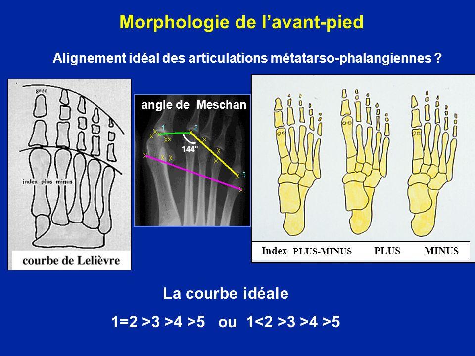 Index PLUS-MINUS PLUS MINUS La courbe idéale 1=2 >3 >4 >5 ou 1 3 >4 >5 2 5 1 144° angle de Meschan Morphologie de lavant-pied Alignement idéal des articulations métatarso-phalangiennes ?