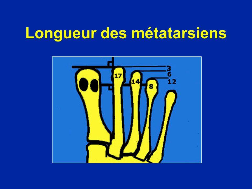 Longueur des métatarsiens