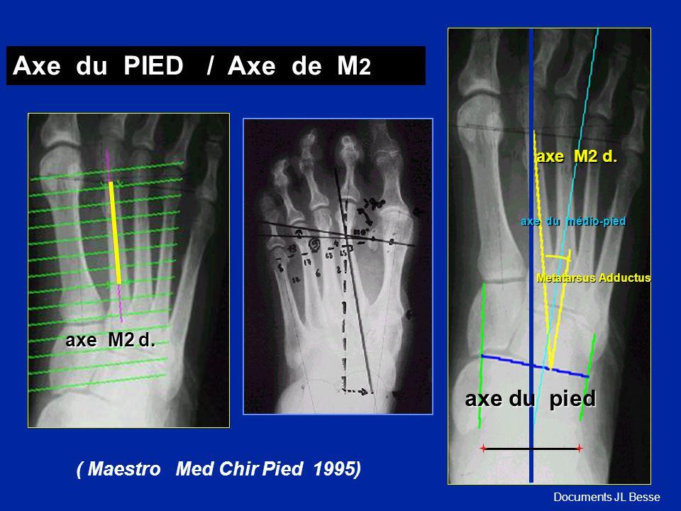 axe M2 d. Axe du PIED / Axe de M 2 ( Maestro Med Chir Pied 1995) Metatarsus Adductus axe du médio-pied axe M2 d. axe du pied axe du pied Documents JL