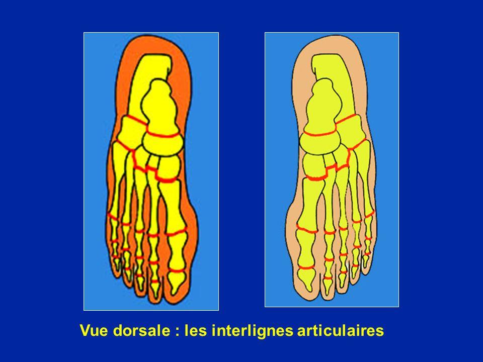Vue dorsale : les interlignes articulaires