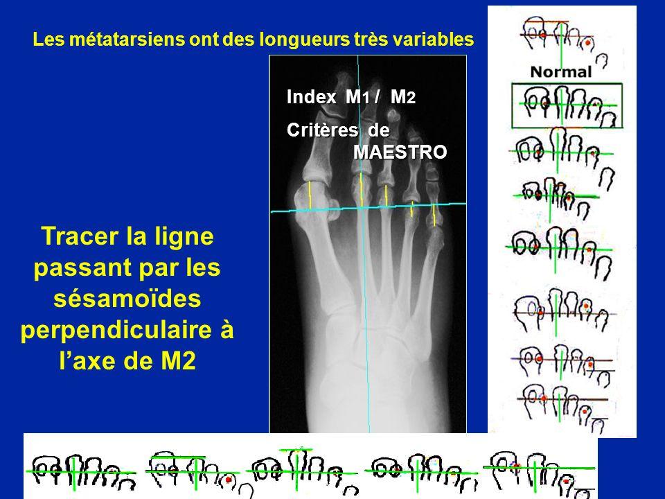 Index M 1 / M 2 Critères de MAESTRO Les métatarsiens ont des longueurs très variables Tracer la ligne passant par les sésamoïdes perpendiculaire à laxe de M2