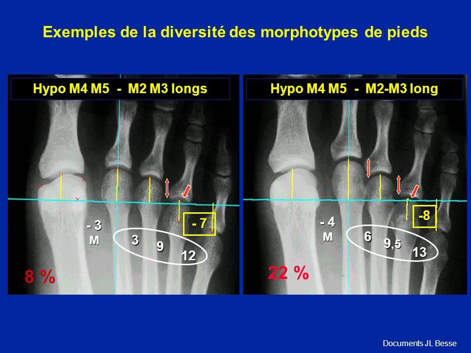 Hypo M4 M5 - M2 M3 longs 12 - 3 M 3 9 - 7 8 % Hypo M4 M5 - M2-M3 long 13 - 4 M 6 9,5 -8 22 % Exemples de la diversité des morphotypes de pieds Documents JL Besse