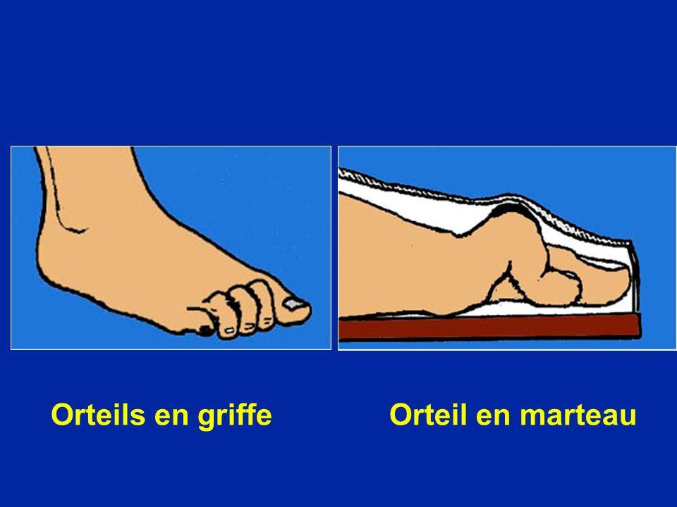 Orteils en griffe Orteil en marteau